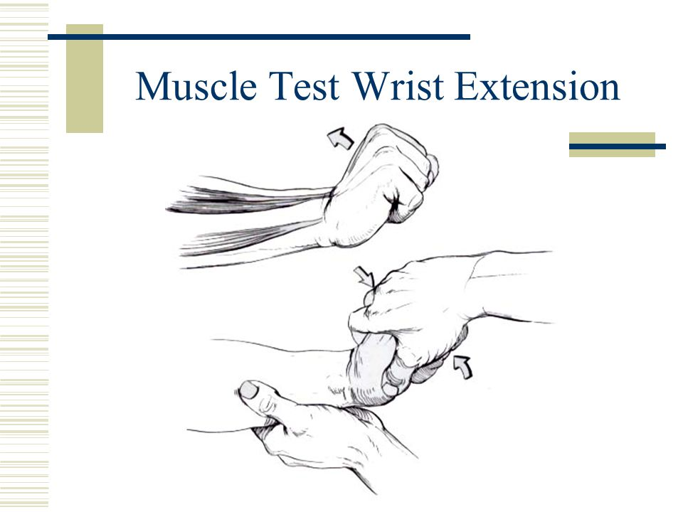 Muscle Test Wrist Extension
