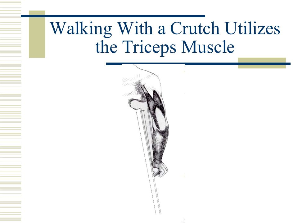 Walking With a Crutch Utilizes the Triceps Muscle