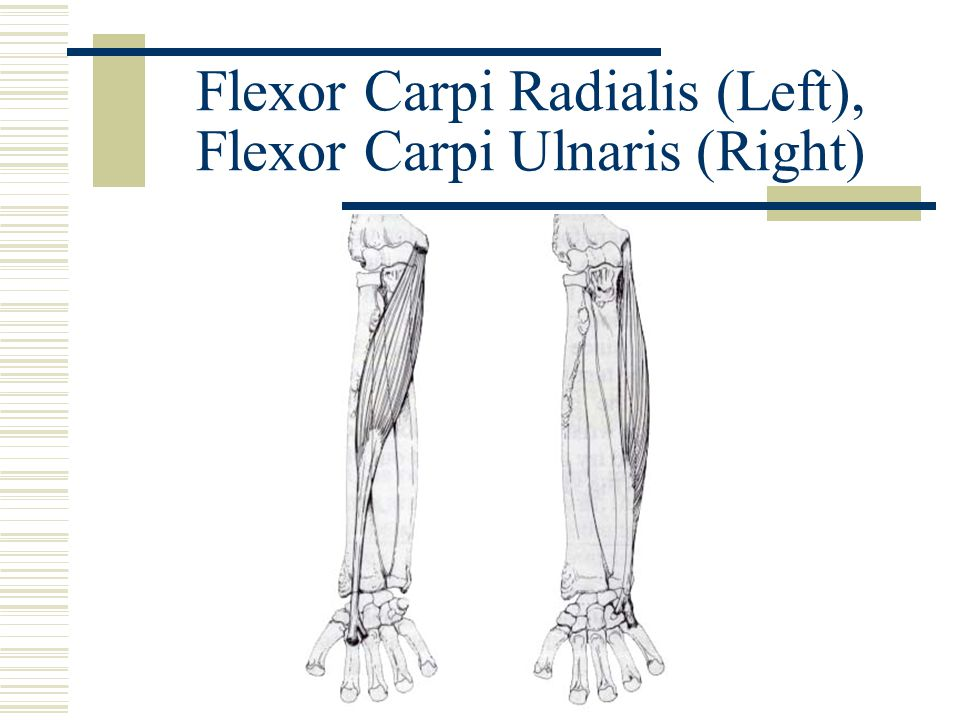 Flexor Carpi Radialis (Left), Flexor Carpi Ulnaris (Right)