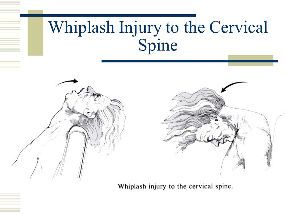 Whiplash Injury to the Cervical Spine