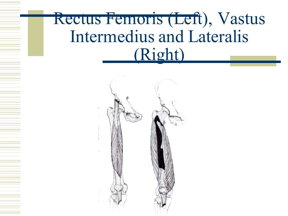 Rectus Femoris (Left), Vastus Intermedius and Lateralis (Right)