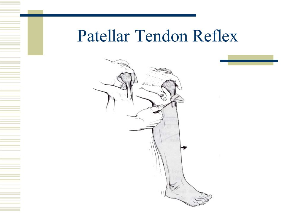 Patellar Tendon Reflex
