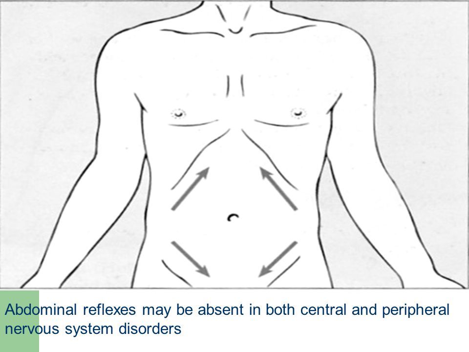 Abdominal reflexes may be absent in both central and peripheral nervous system disorders