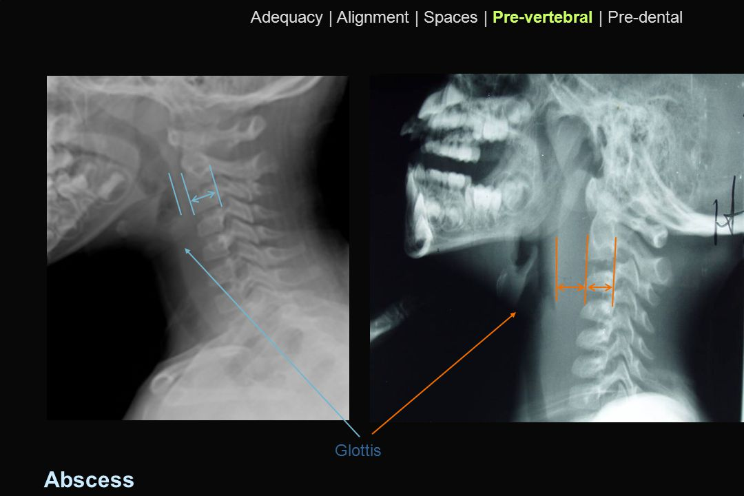 Abscess Adequacy | Alignment | Spaces | Pre-vertebral | Pre-dental