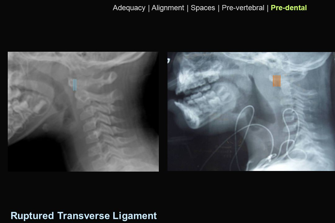Ruptured Transverse Ligament