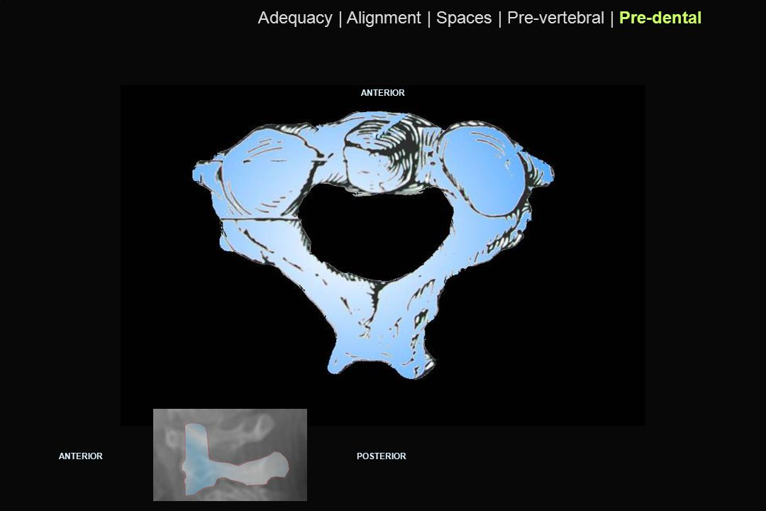 Adequacy | Alignment | Spaces | Pre-vertebral | Pre-dental
