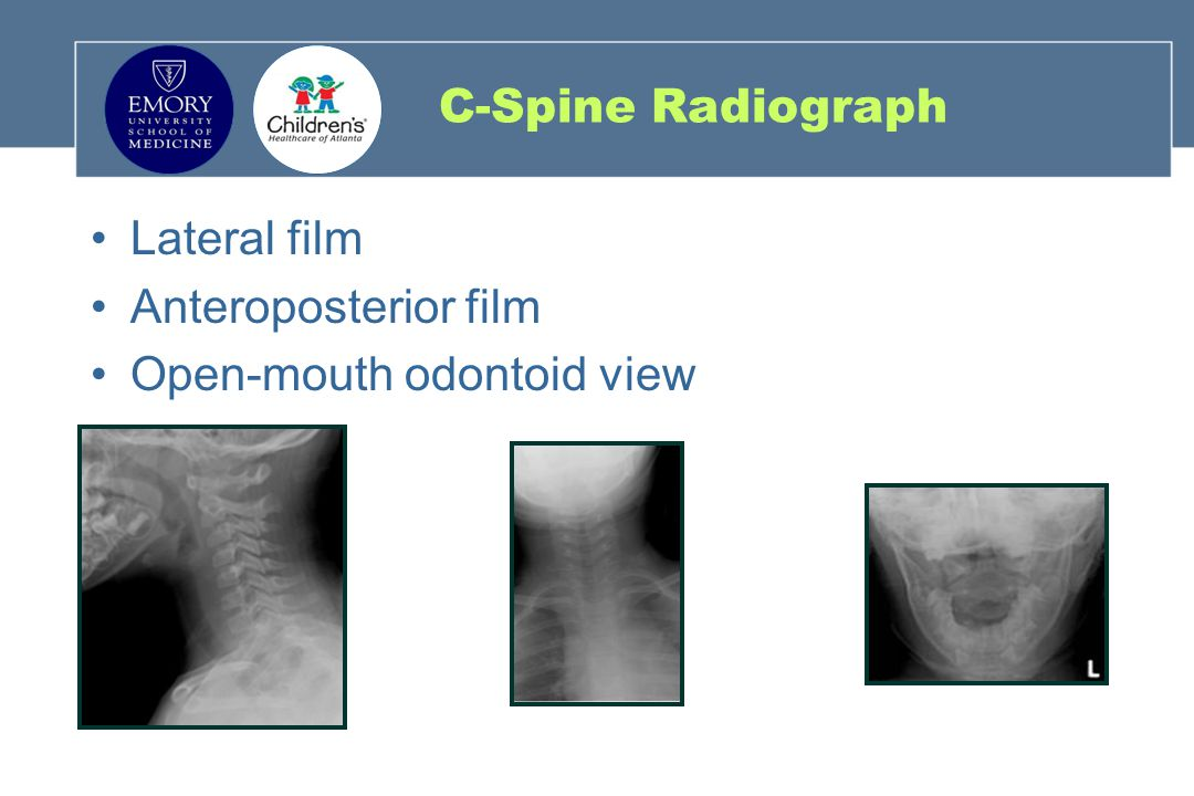 C-Spine Radiograph Lateral film Anteroposterior film Open-mouth odontoid view