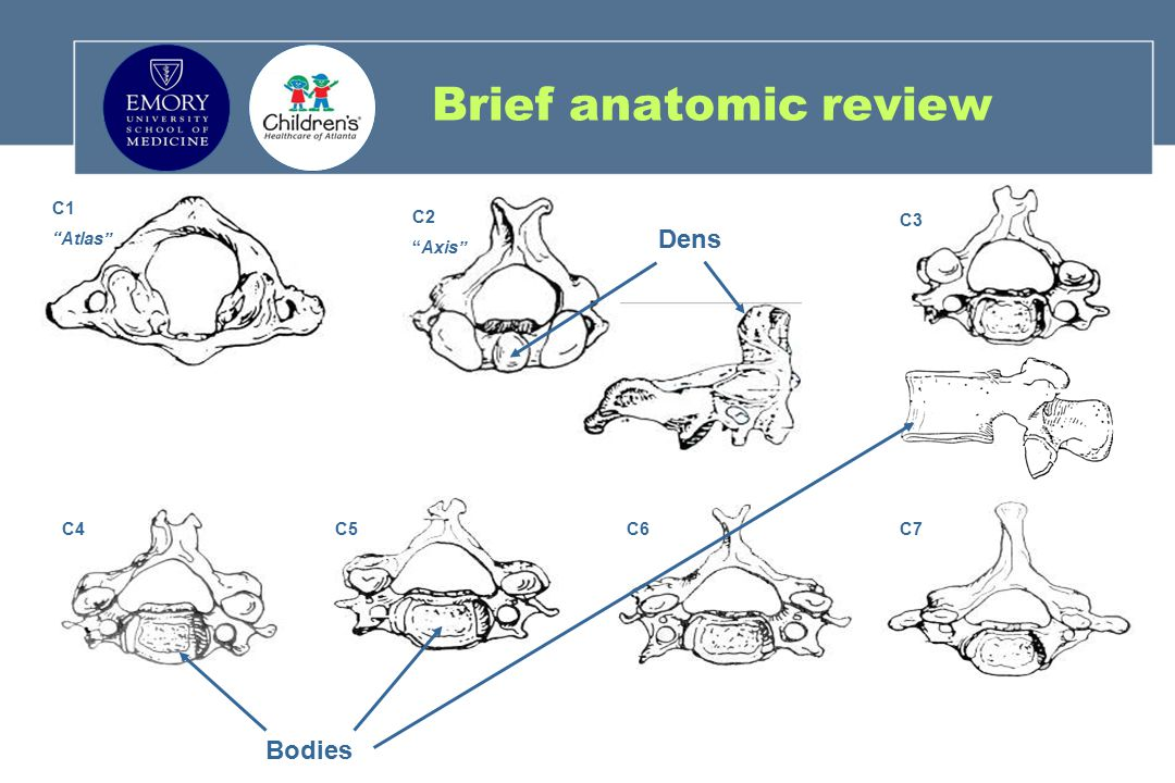 Brief anatomic review C1 Atlas C2 Axis C4 C5 C6 C7 C3 Dens Bodies