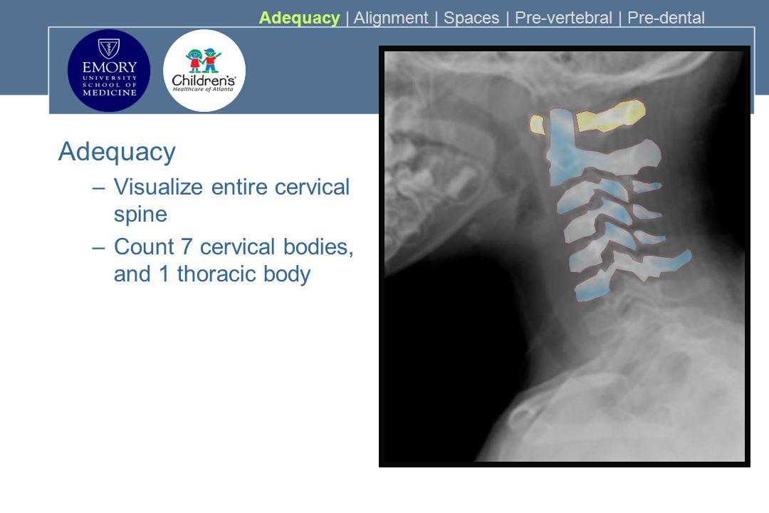 Adequacy Visualize entire cervical spine