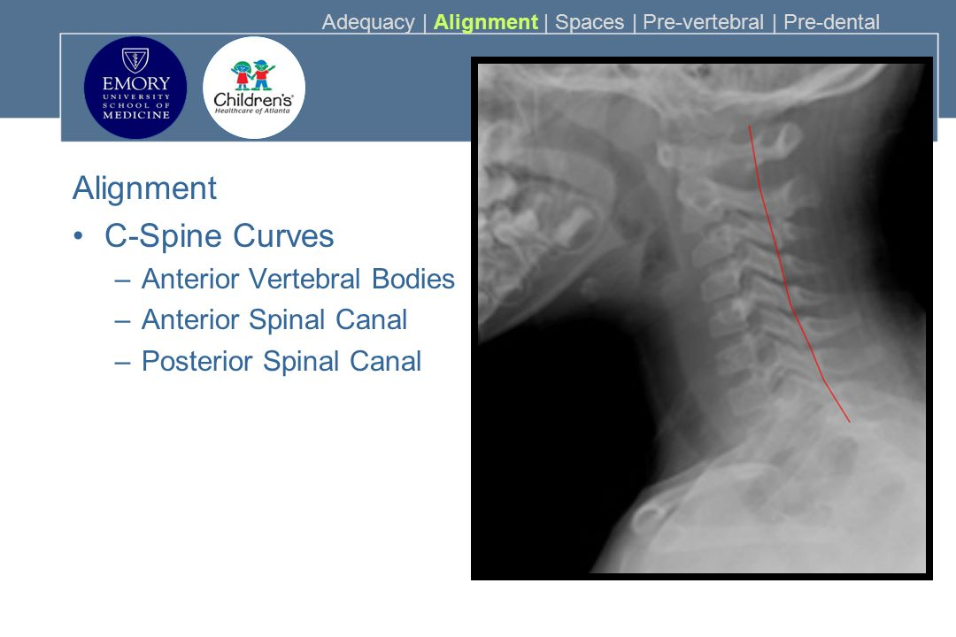 Alignment C-Spine Curves Anterior Vertebral Bodies