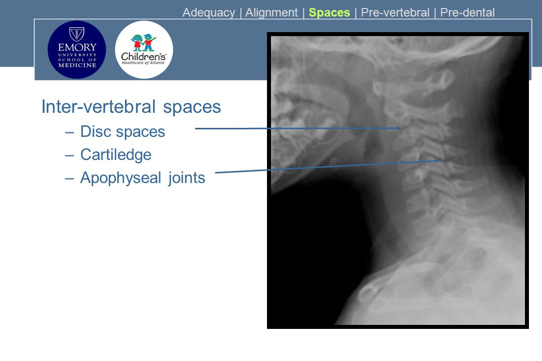 Inter-vertebral spaces