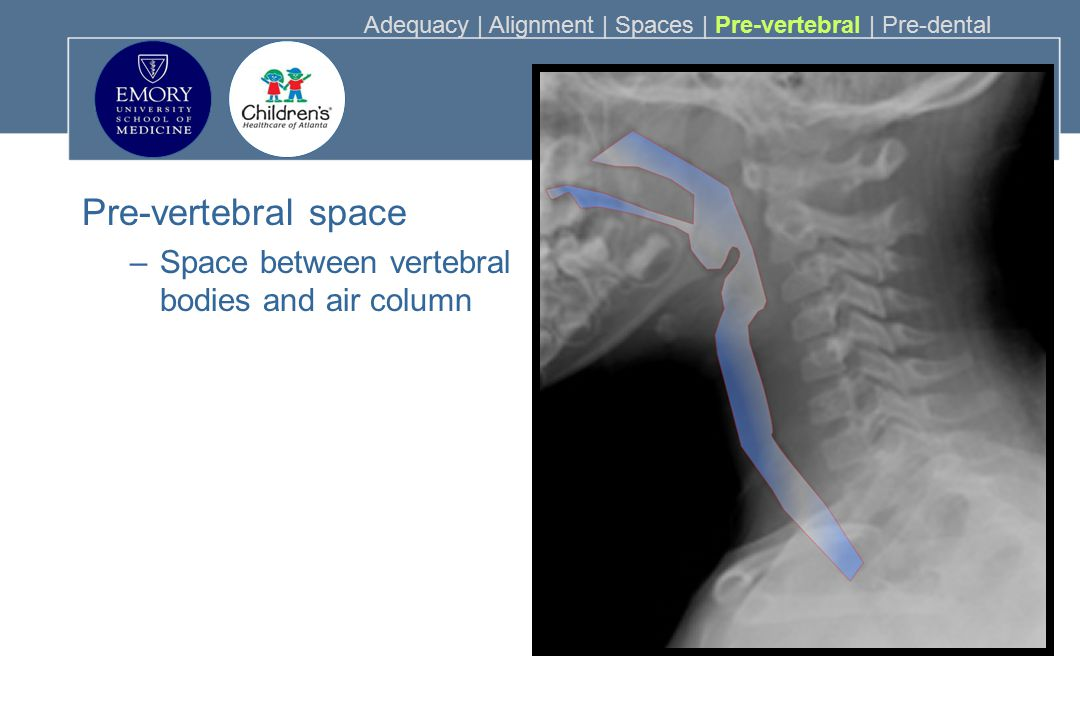 Pre-vertebral space Space between vertebral bodies and air column