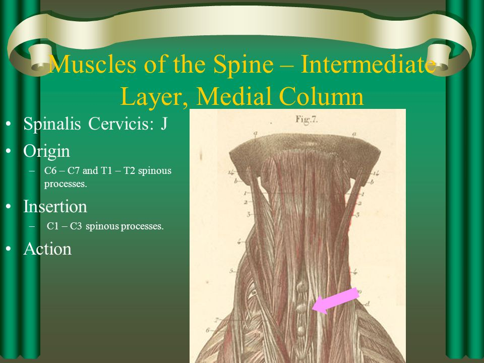 Muscles of the Spine – Intermediate Layer, Medial Column