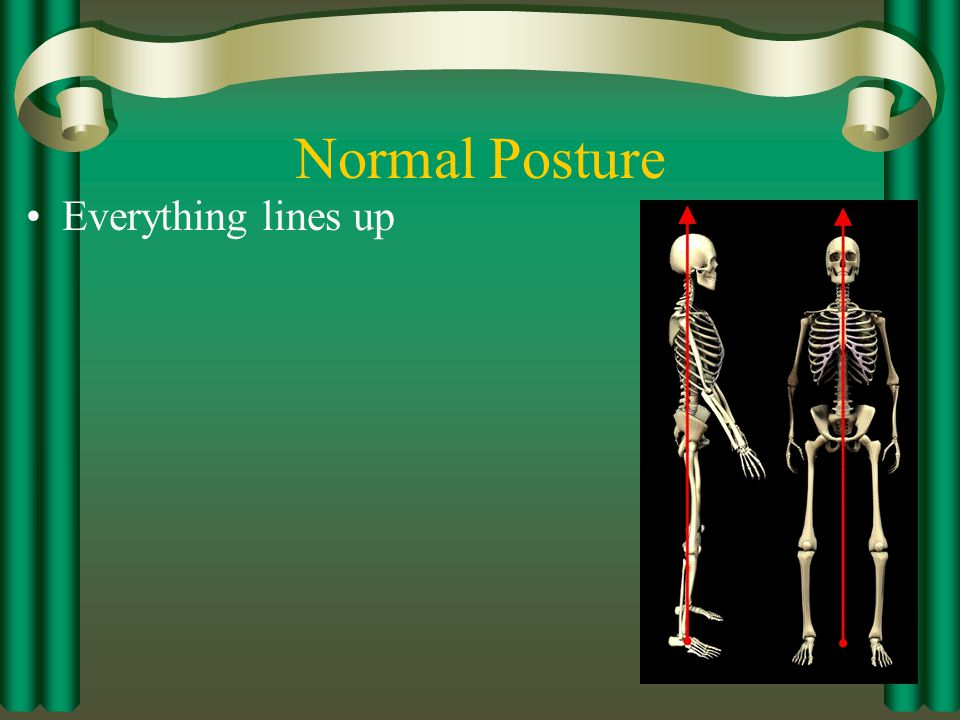 Normal Posture Everything lines up