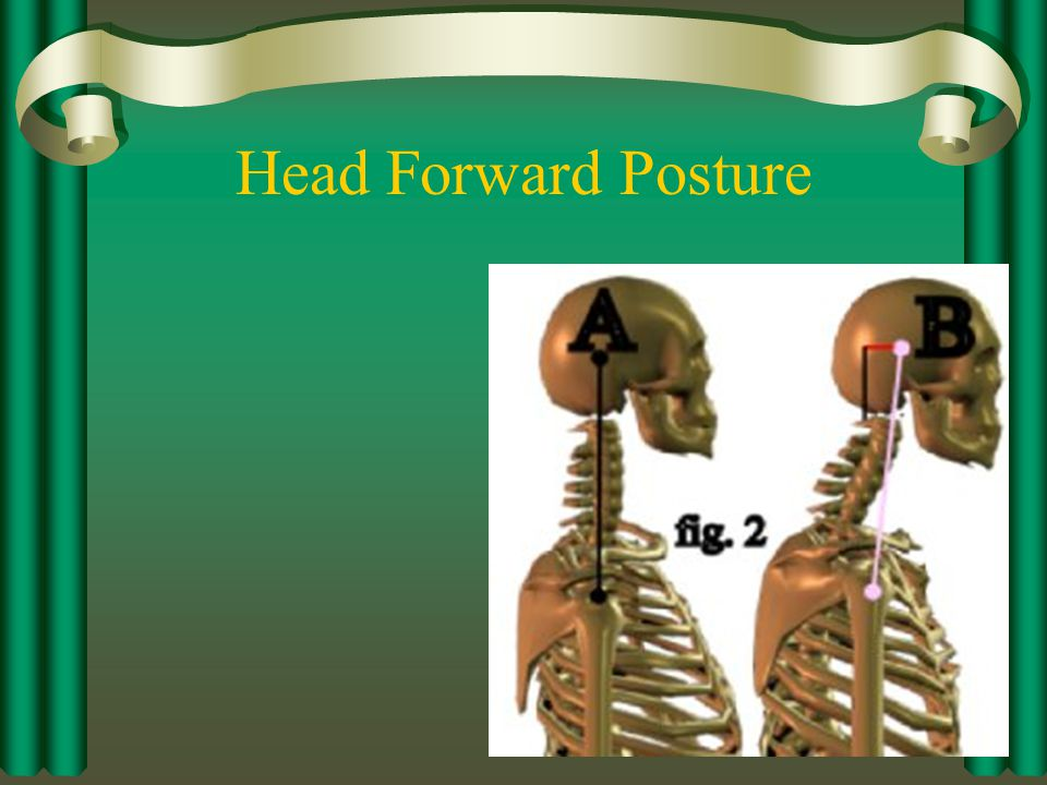 Head Forward Posture