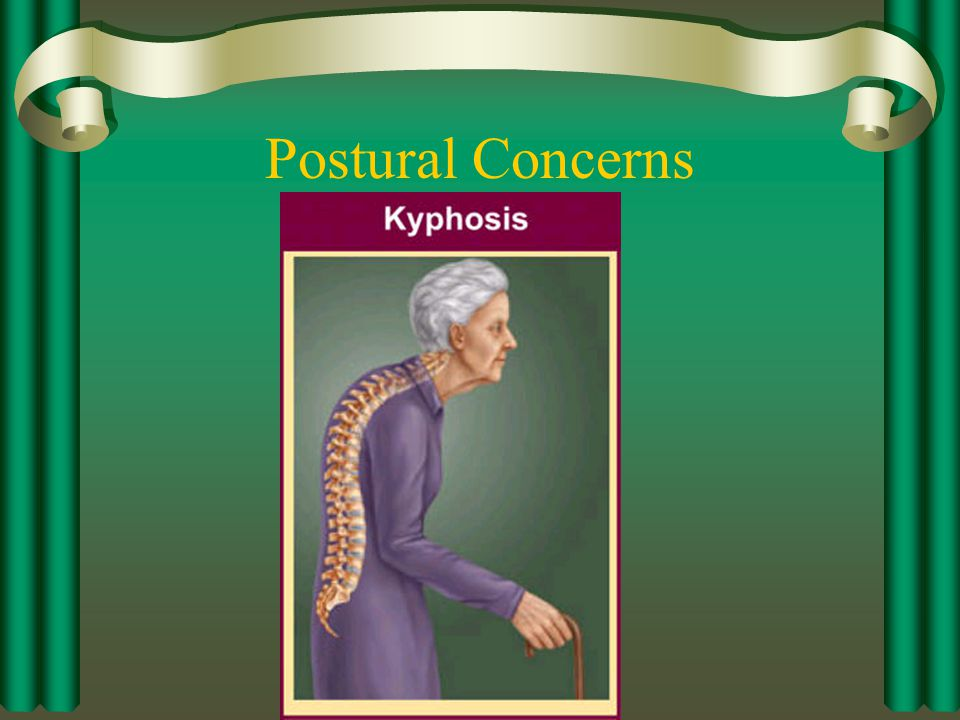 Postural Concerns Excessive roundedness of the shoulders.