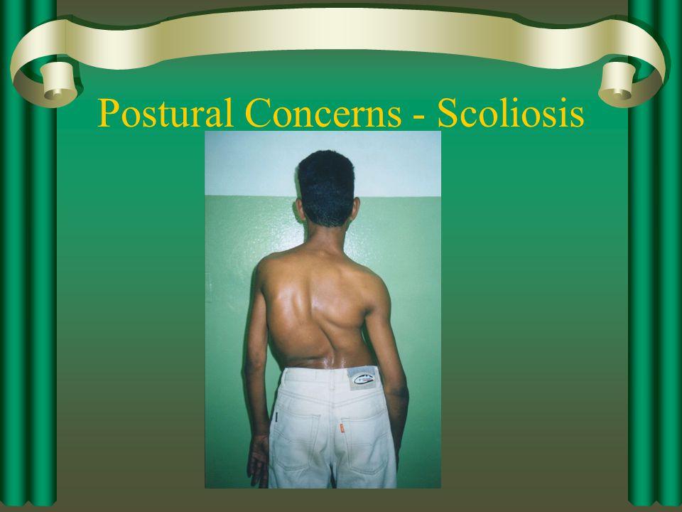 Postural Concerns - Scoliosis