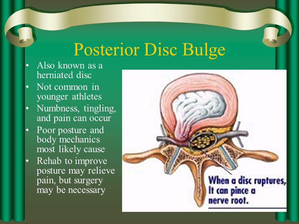 Posterior Disc Bulge Also known as a herniated disc