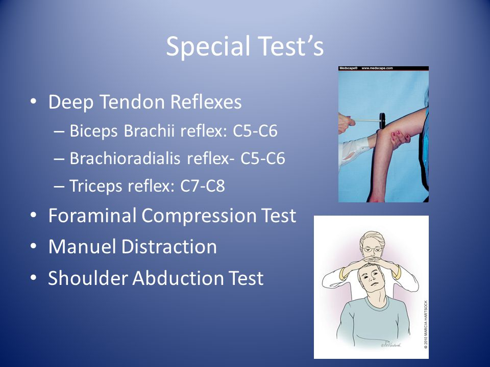 Special Test's Deep Tendon Reflexes Foraminal Compression Test