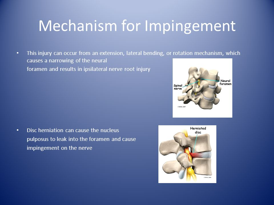 Mechanism for Impingement