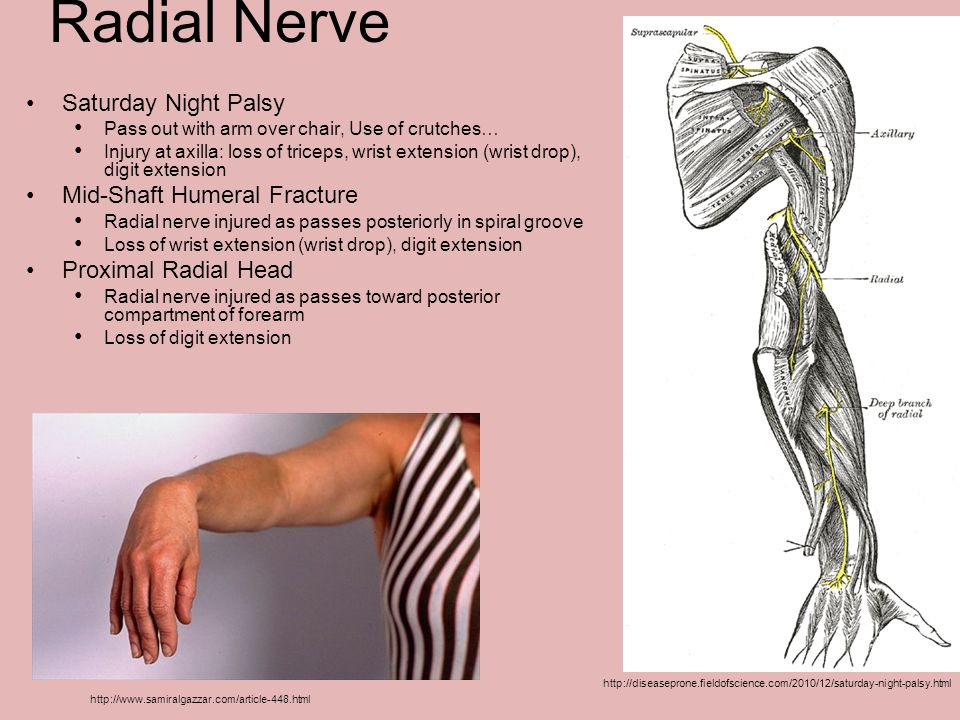 Radial Nerve Saturday Night Palsy Mid-Shaft Humeral Fracture