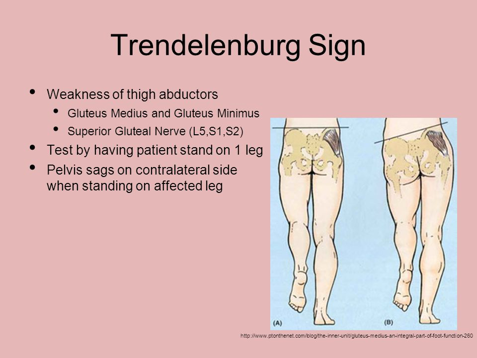 Trendelenburg Sign Weakness of thigh abductors