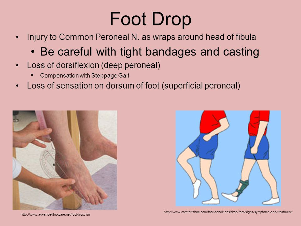 Foot Drop Be careful with tight bandages and casting