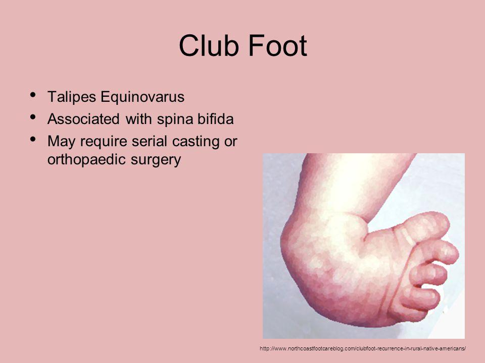 Club Foot Talipes Equinovarus Associated with spina bifida