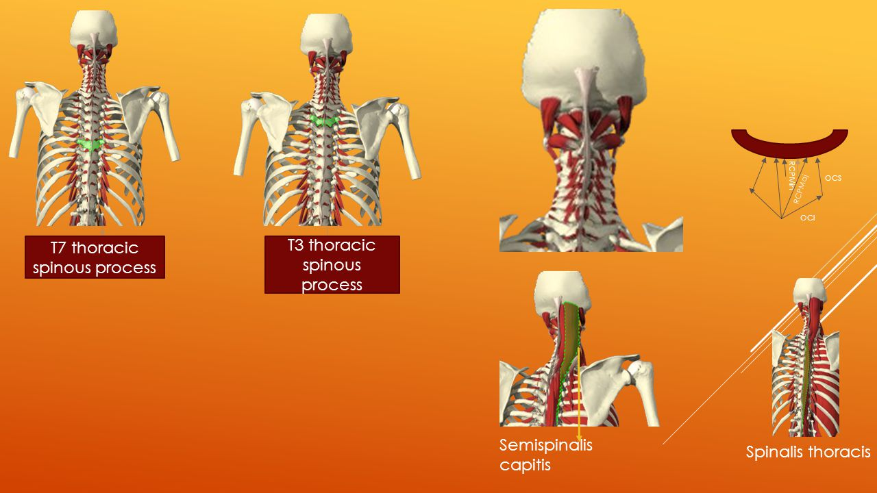 T7 thoracic spinous process T3 thoracic spinous process