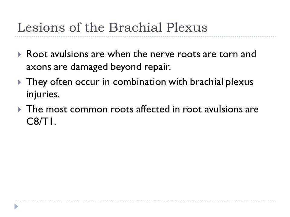 Lesions of the Brachial Plexus