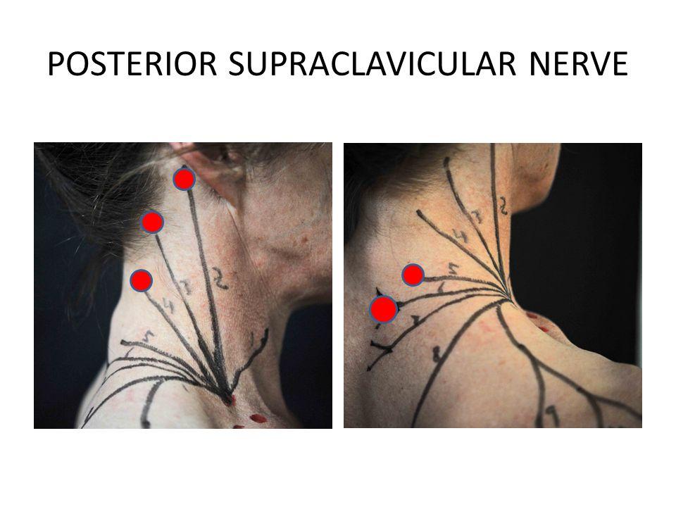 POSTERIOR SUPRACLAVICULAR NERVE