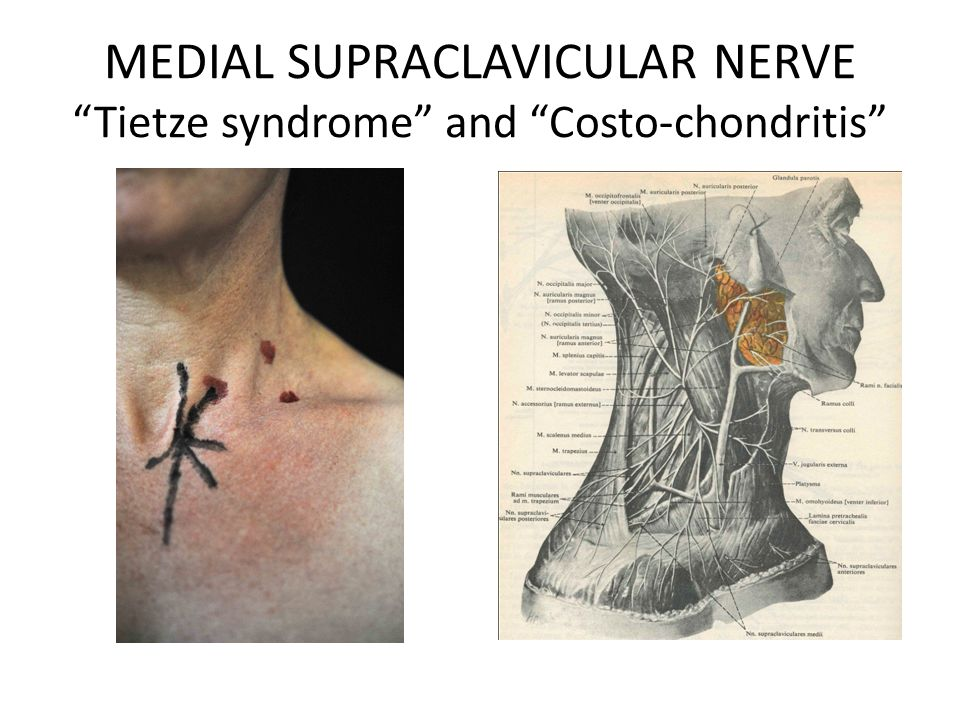 MEDIAL SUPRACLAVICULAR NERVE Tietze syndrome and Costo-chondritis