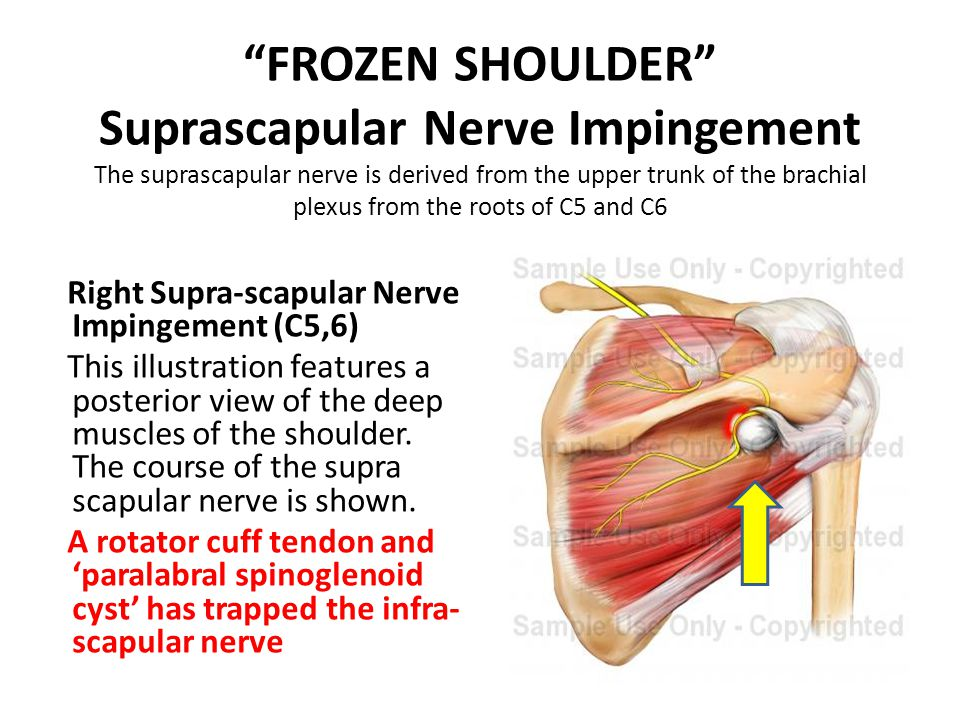 FROZEN SHOULDER Suprascapular Nerve Impingement The suprascapular nerve is derived from the upper trunk of the brachial plexus from the roots of C5 and C6