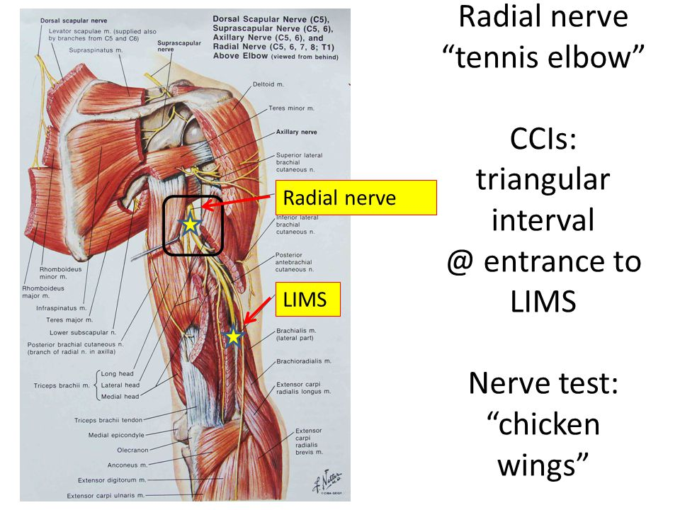 Radial nerve tennis elbow CCIs: triangular interval @ entrance to LIMS Nerve test: chicken wings
