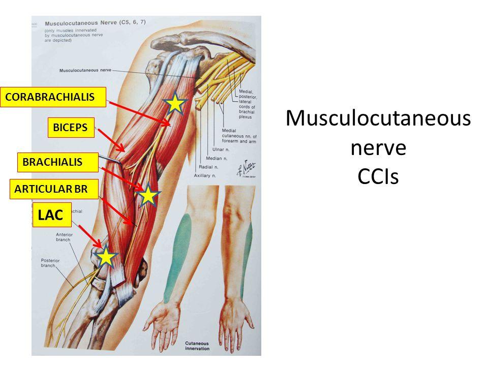 Musculocutaneous nerve CCIs