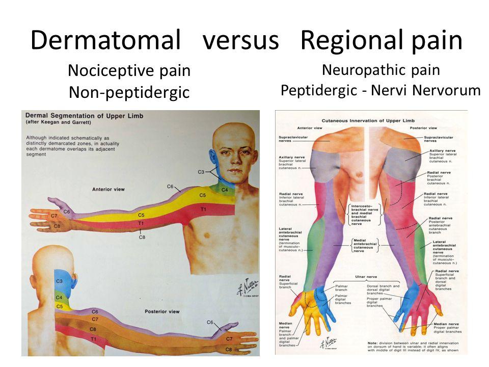 Dermatomal versus Regional pain