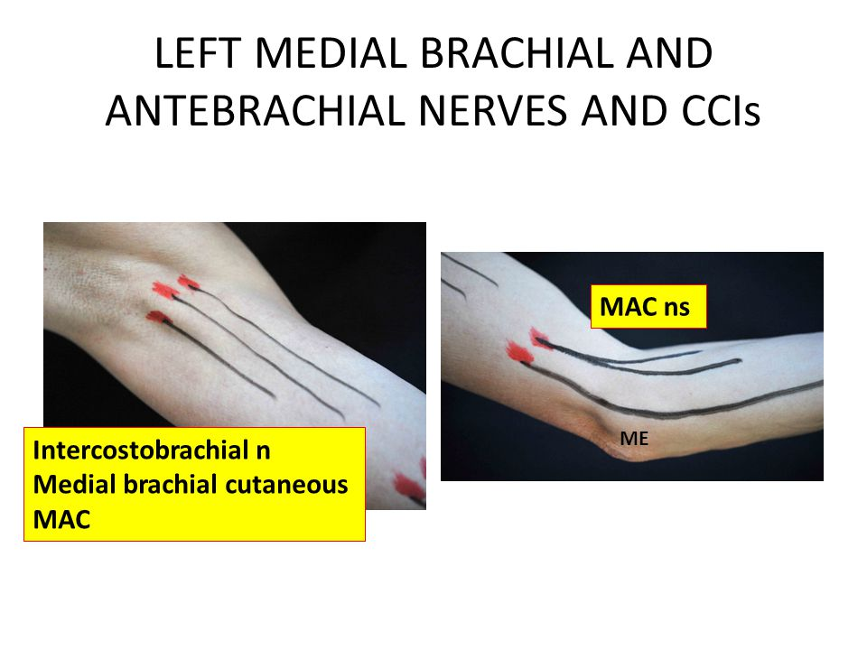 LEFT MEDIAL BRACHIAL AND ANTEBRACHIAL NERVES AND CCIs