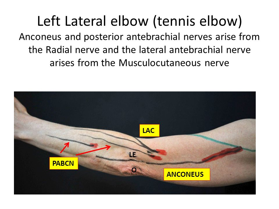 Left Lateral elbow (tennis elbow) Anconeus and posterior antebrachial nerves arise from the Radial nerve and the lateral antebrachial nerve arises from the Musculocutaneous nerve