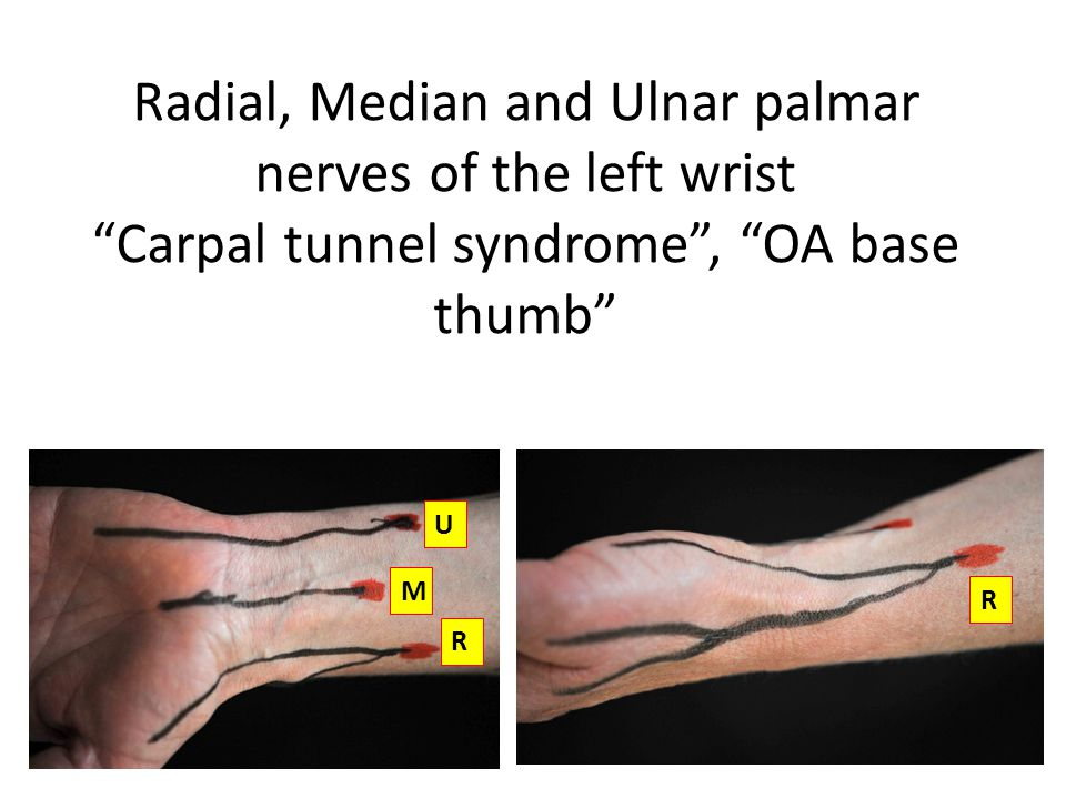 Radial, Median and Ulnar palmar nerves of the left wrist Carpal tunnel syndrome , OA base thumb