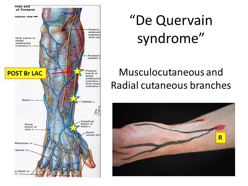 De Quervain syndrome Musculocutaneous and Radial cutaneous branches