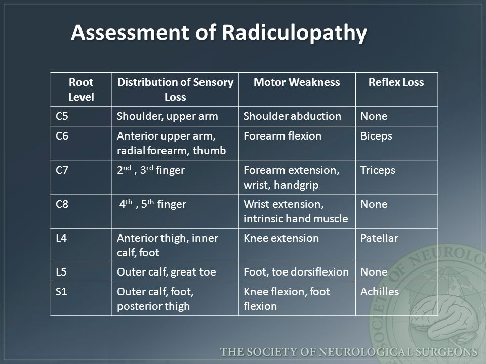 Assessment of Radiculopathy Distribution of Sensory Loss