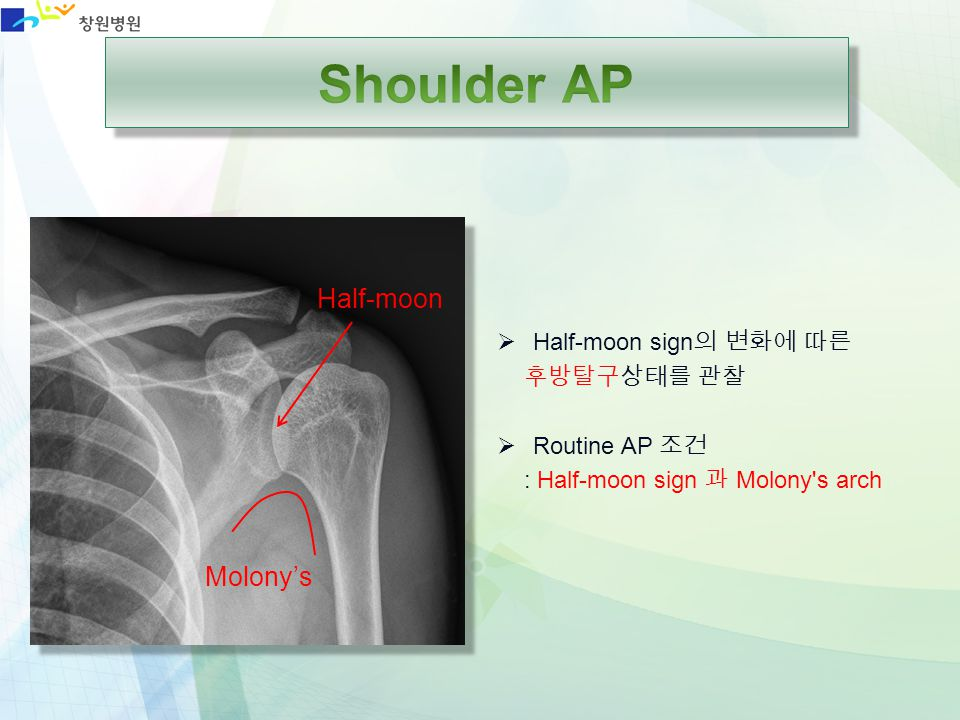 Shoulder AP Half-moon Molony's Half-moon sign의 변화에 따른 후방탈구상태를 관찰