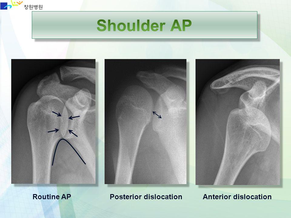 Shoulder AP Routine AP Posterior dislocation Anterior dislocation