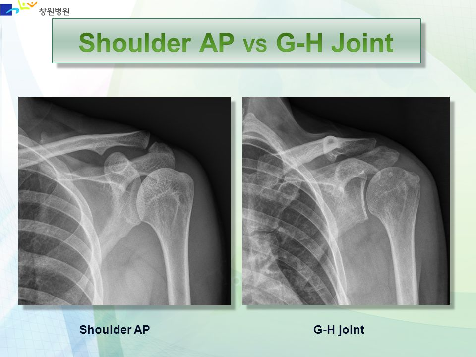 Shoulder AP VS G-H Joint