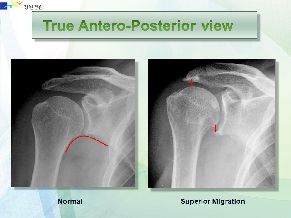 True Antero-Posterior view