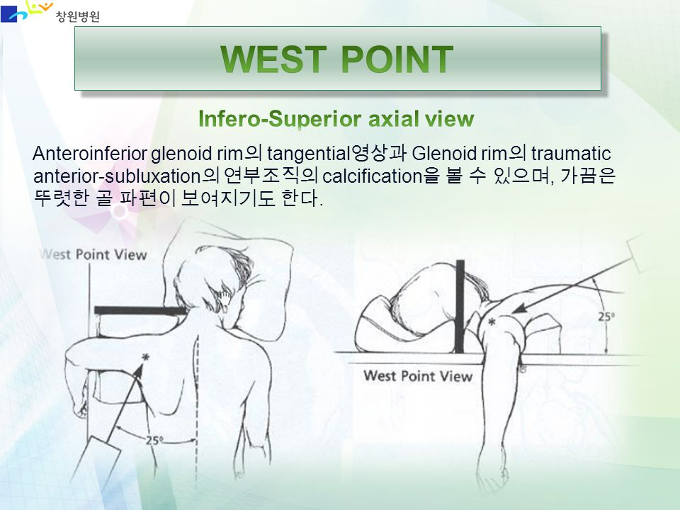 WEST POINT Infero-Superior axial view