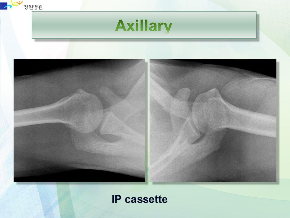 Axillary IP cassette