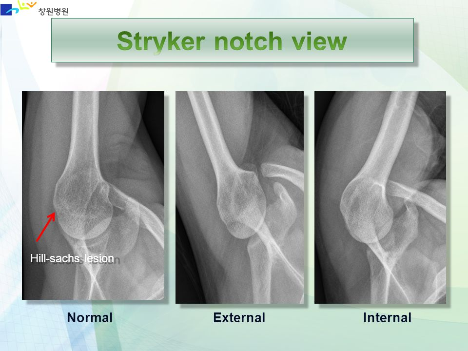 Stryker notch view Hill-sachs lesion Normal External Internal
