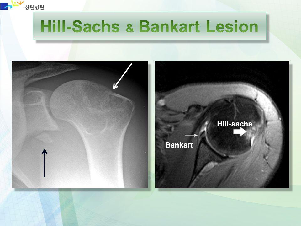 Hill-Sachs & Bankart Lesion