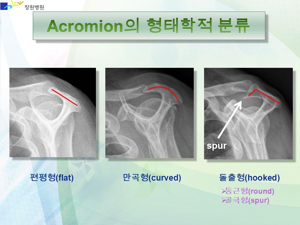 Acromion의 형태학적 분류 spur 편평형(flat) 만곡형(curved) 돌출형(hooked) 둥근형(round)